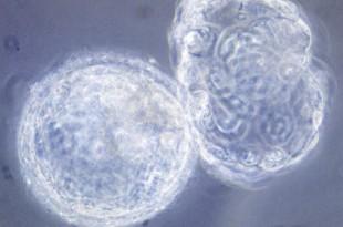 Cellules d'un embryon humain en phase de division (blastomère, 6 jours après la fertilisation), en microscopie optique.