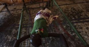 Un jeune patient soudanais atteint de choléra