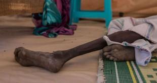 © STEFANIE GLINSKI/AFP Ce jeune sud-soudanais de 18 ans souffrant de malnutrition pèse 11 kilogrammes.