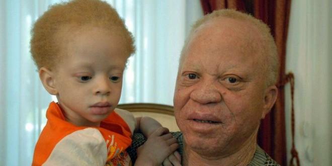 L'artiste malien Salif Keita et sa fille Nanty à Bamako le 10 janvier 2009 avant la première levée de fonds télévisée en Afrique visant à aider la population albinos.
